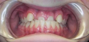 Case 1 - Before Treatment