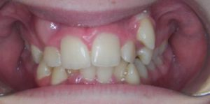 Case 3 - Before Treatment